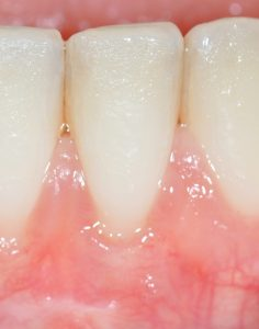 Gum Disease Treatment - Plastic Surgery - Periodontal Specialists, MN