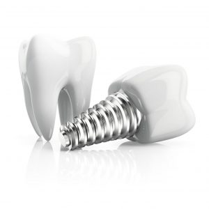 full mouth dental implants - periodontal specialists, MN