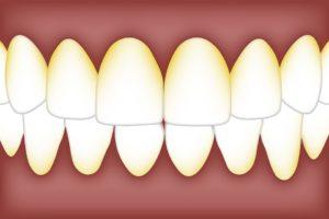 Gum Disease Symptoms & Treatment Periodontal Specialists, MN