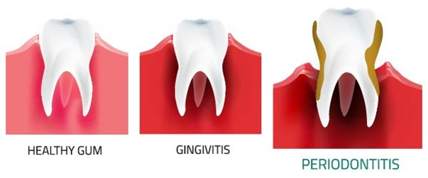 gum disease treatment - periodontist